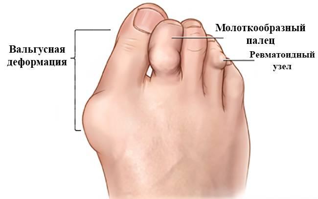 Хирургическое лечение вальгусной деформации стоп (удаление косточки на стопе)