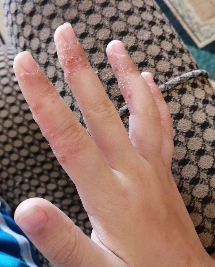 Что может обозначать боль в пальцах? причины и лечение боли в суставах пальцев рук и ног.
