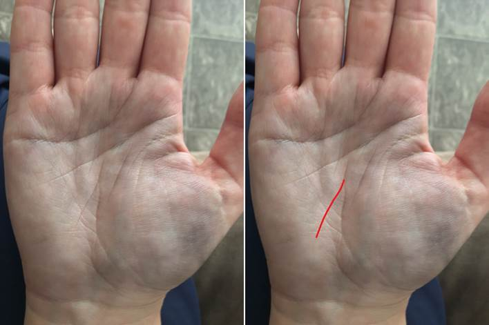 Линия здоровья на руке — расшифровка с фото