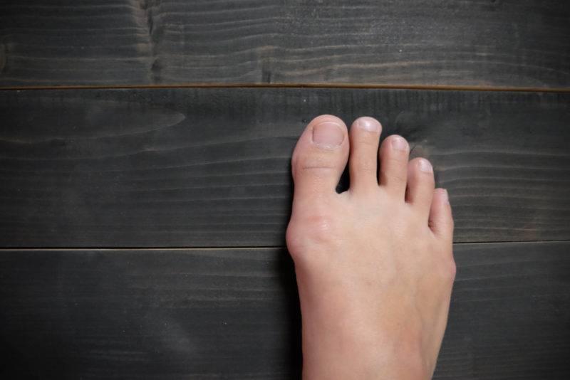 Вальгусная деформация большого пальца стопы