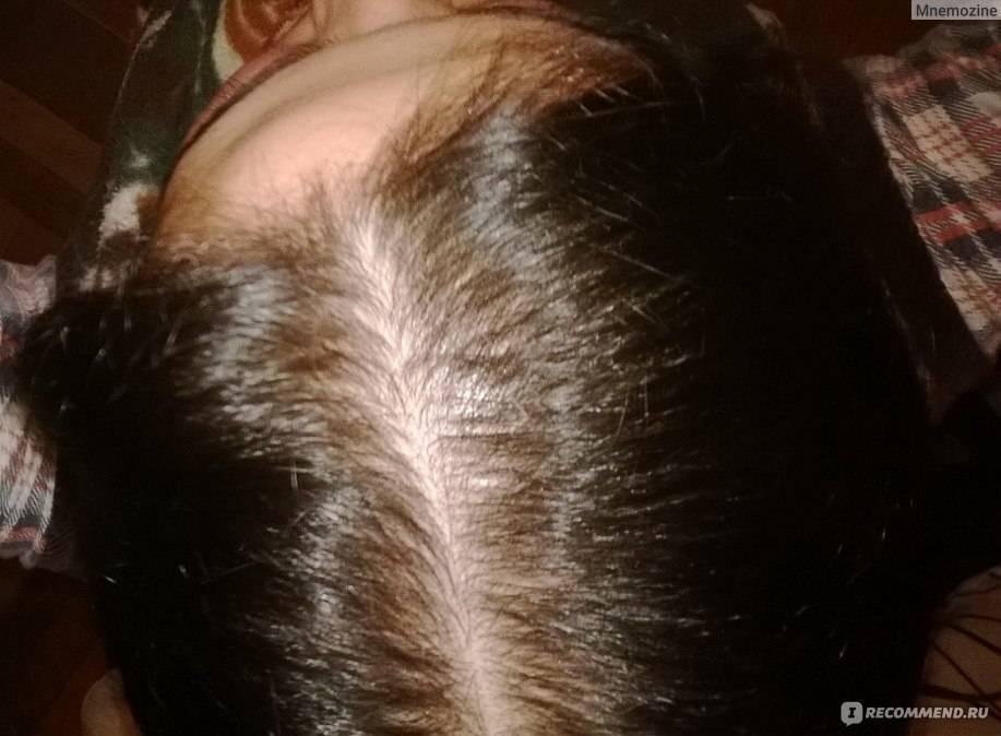 Сонник выпавшие клоки волос. к чему снится выпавшие клоки волос видеть во сне - сонник дома солнца