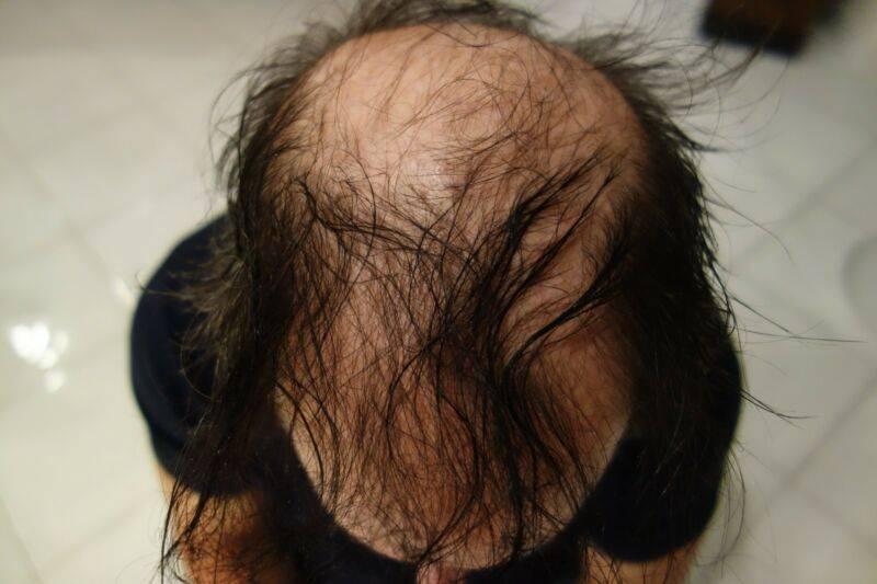Выпал клок волос с головы