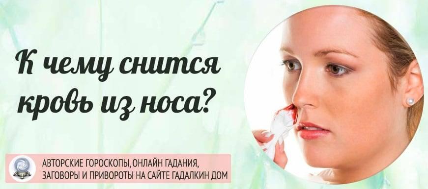 К чему снится кровь из носа: у себя или других? основные толкования, к чему снится кровь из носа - автор екатерина данилова - журнал женское мнение