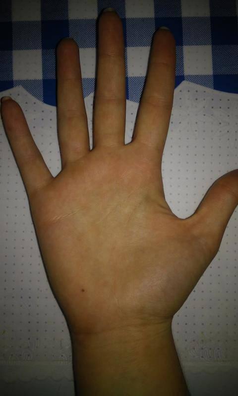 Что значит родинка на большом пальце правой или левой руки, ее влияние на судьбу - умный доктор