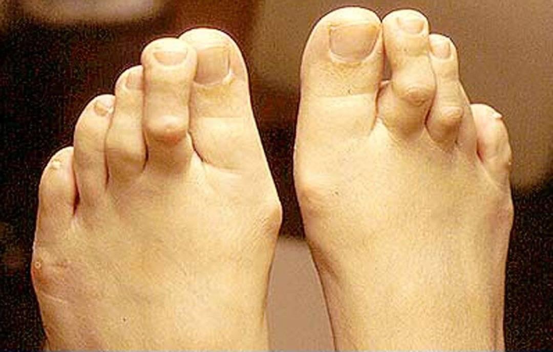 Панариций - причины и лечение воспаления тканей пальца рук и ног