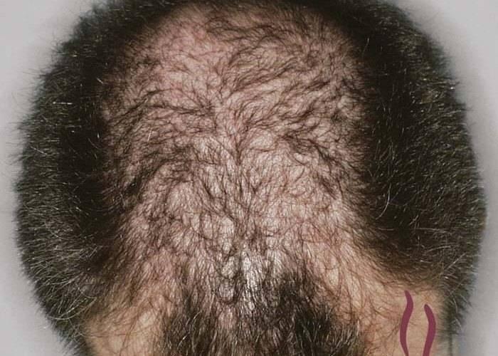 К чему снится, что волос выпал: точное толкование по сонникам