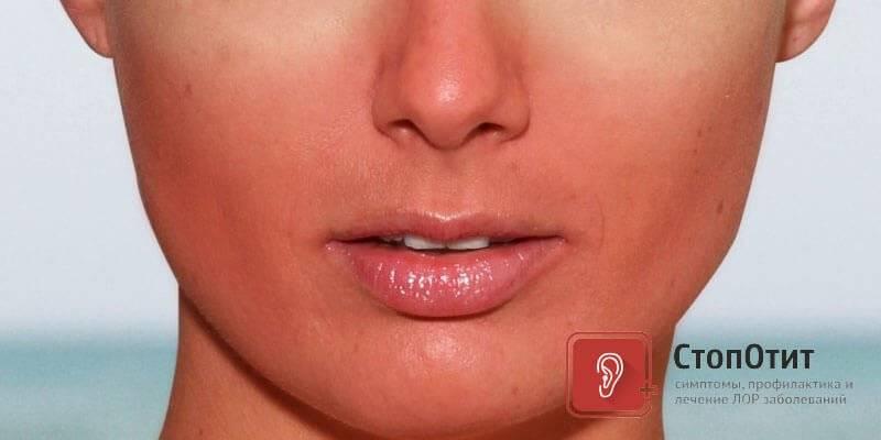Лечение зуда кожи, шелушения и покраснения