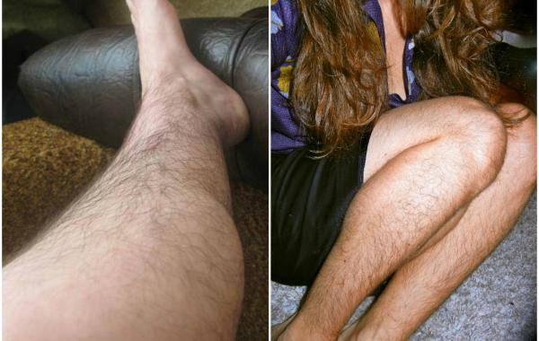 К чему снятся волосатые ноги: будут проблемы, есть страхи или грядёт неравный брак? основные толкования сна про волосатые ноги
