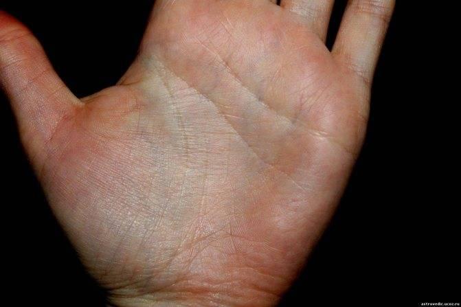 Линия здоровья на руке - расшифровка с фото в хиромантии