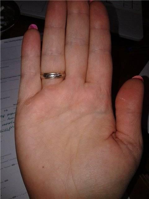 Родинка на безымянном пальце правой руки: отличие основного значения от расположения слева и у основания