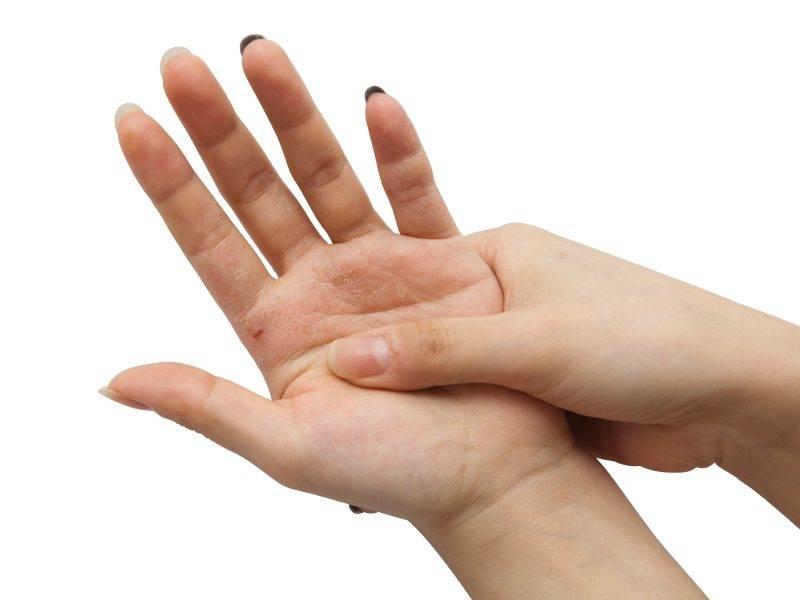 Почему чешется левая рука (ладонь, пальцы): приметы и суеверия