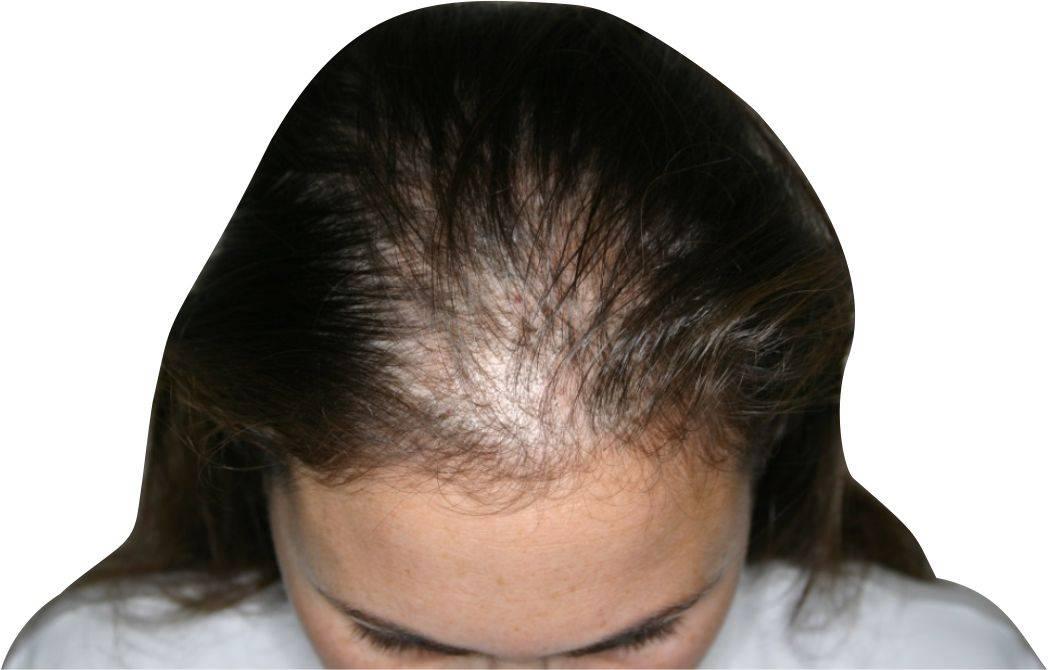 Выпадение волос клоками