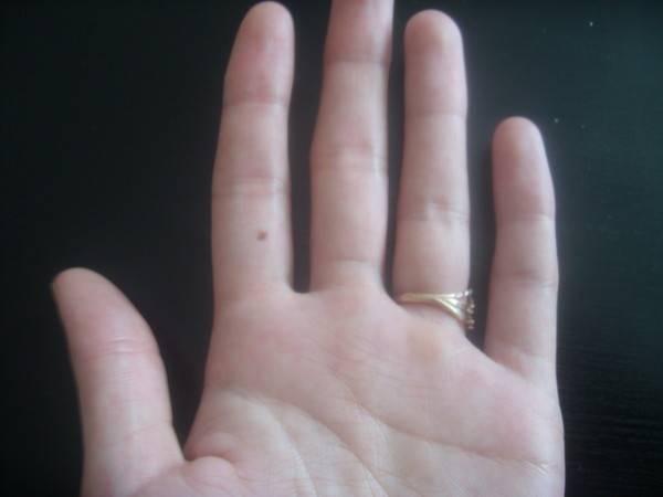 Родинка на большом пальце правой и левой руки — значение