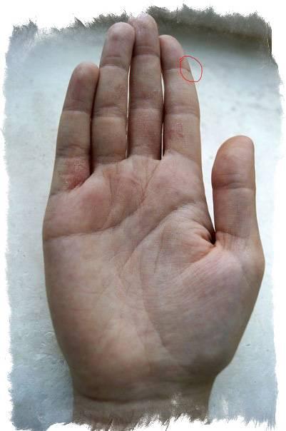 Что означают родинки на пальцах рук и ног: значения для левой и правой стороны