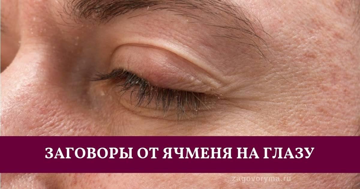 Как правильно заговаривать ячмень на глазу взрослому и ребёнку