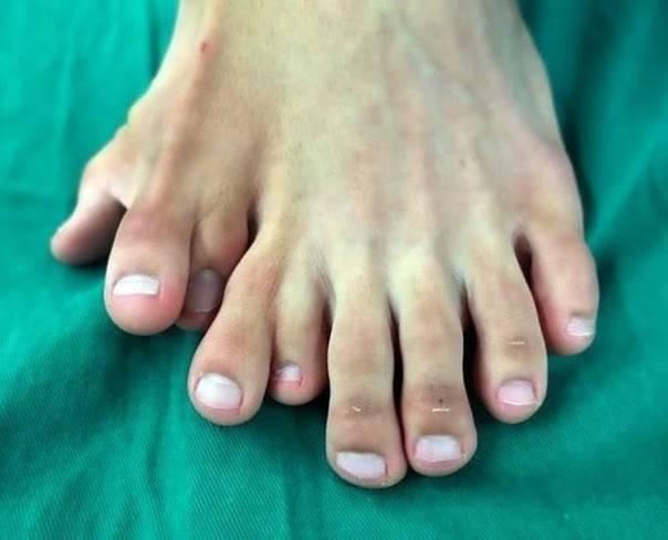 Как называются пальцы на ногах?