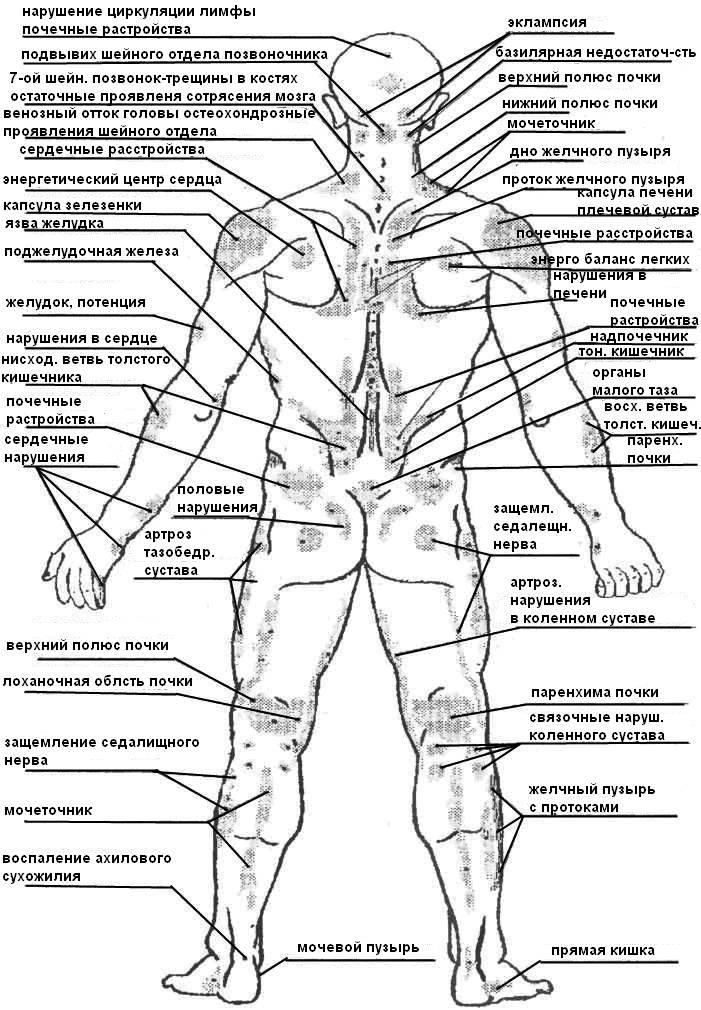 Тема 5 анатомия болевых (уязвимых) точек человека