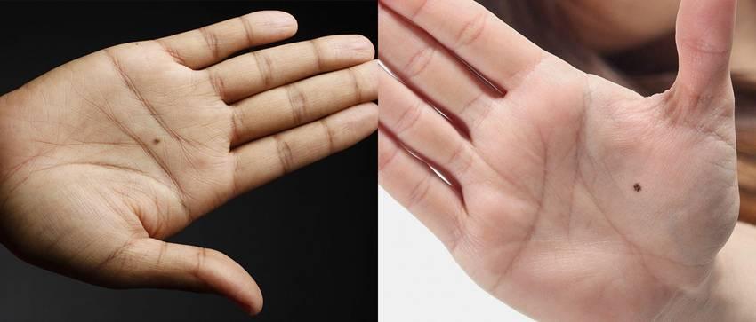 Родимые пятна на руках - как истолковывает их хиромантия
