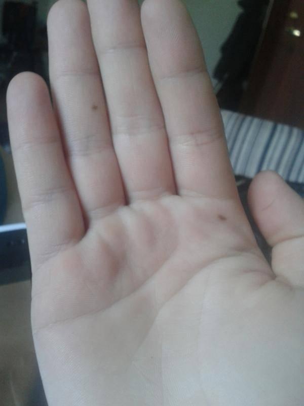 Родинки на руках. родинки на пальцах. пятна на ногтях - junona.pr