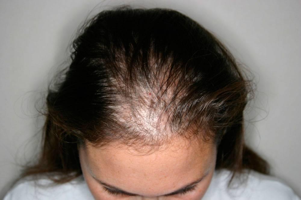 К чему снится, что выпадают волосы: клоками, прядями, пучками