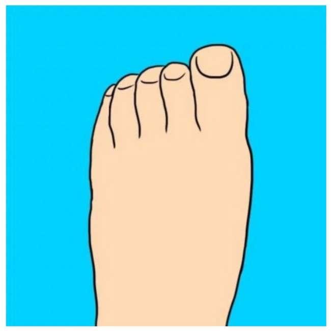 Вальгусная деформация большого пальца стопы - лечение, симптомы, причины, диагностика   центр дикуля