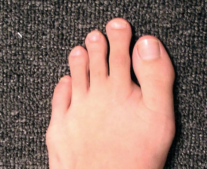 Причины онемения пальцев рук   eurolab   неврология