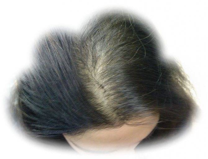 Сонник клочья волос. к чему снится клочья волос видеть во сне - сонник дома солнца
