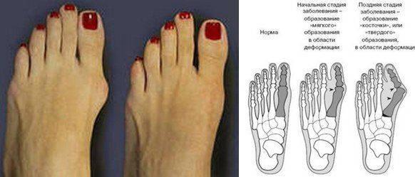 Грибок ногтей на ногах и руках: причины, первые признаки, основные симптомы. лечение онихомикоза в москве