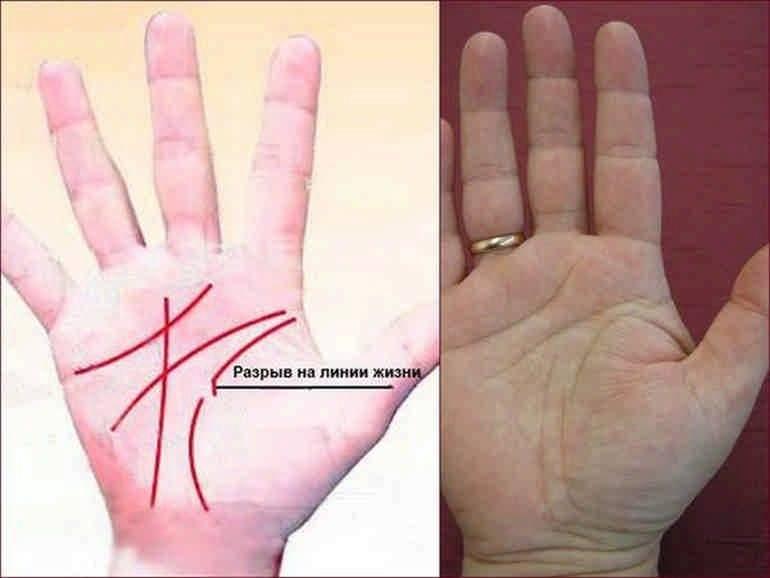 О чем говорит линия судьбы на руке — фото с расшифровкой