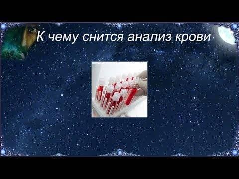 К чему снится кровь из носа — подробное толкование по сонникам к чему снится кровь из носа — подробное толкование по сонникам