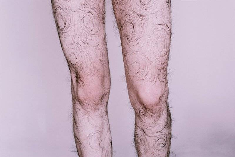 Волосатые ногои