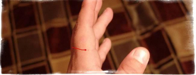 Что значит родинка на большом пальце правой или левой руки, ее влияние на судьбу