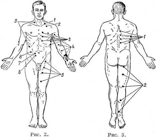 Неврология и рефлексотерапия. иголки как метод в неврологии - инсайт медикал киев позняки