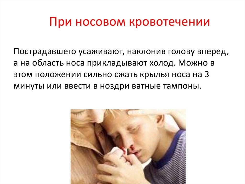 К чему снится кровь из носа?
