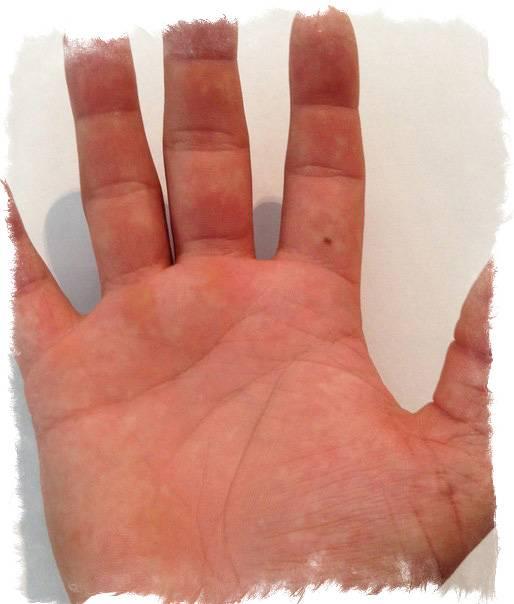 Что означают родинки на пальцах: приметы